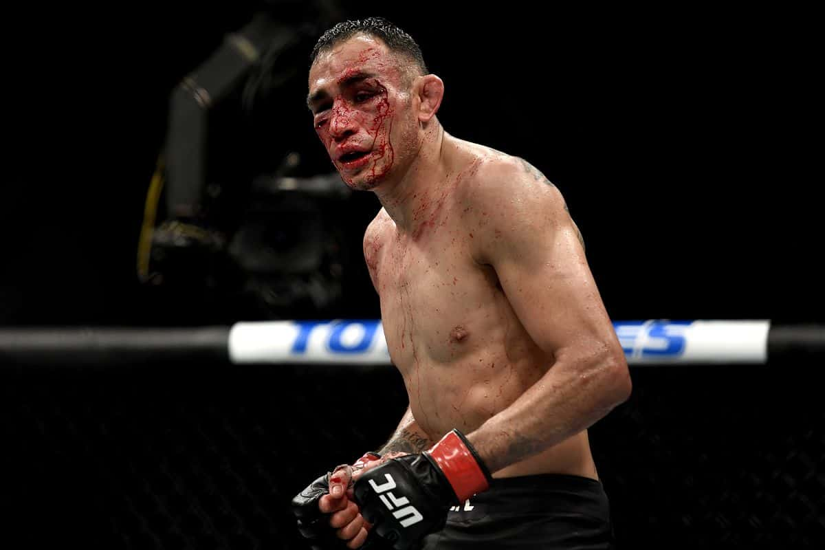 MMA fighter Tony Ferguson after his defeat to Justin Gaethaje